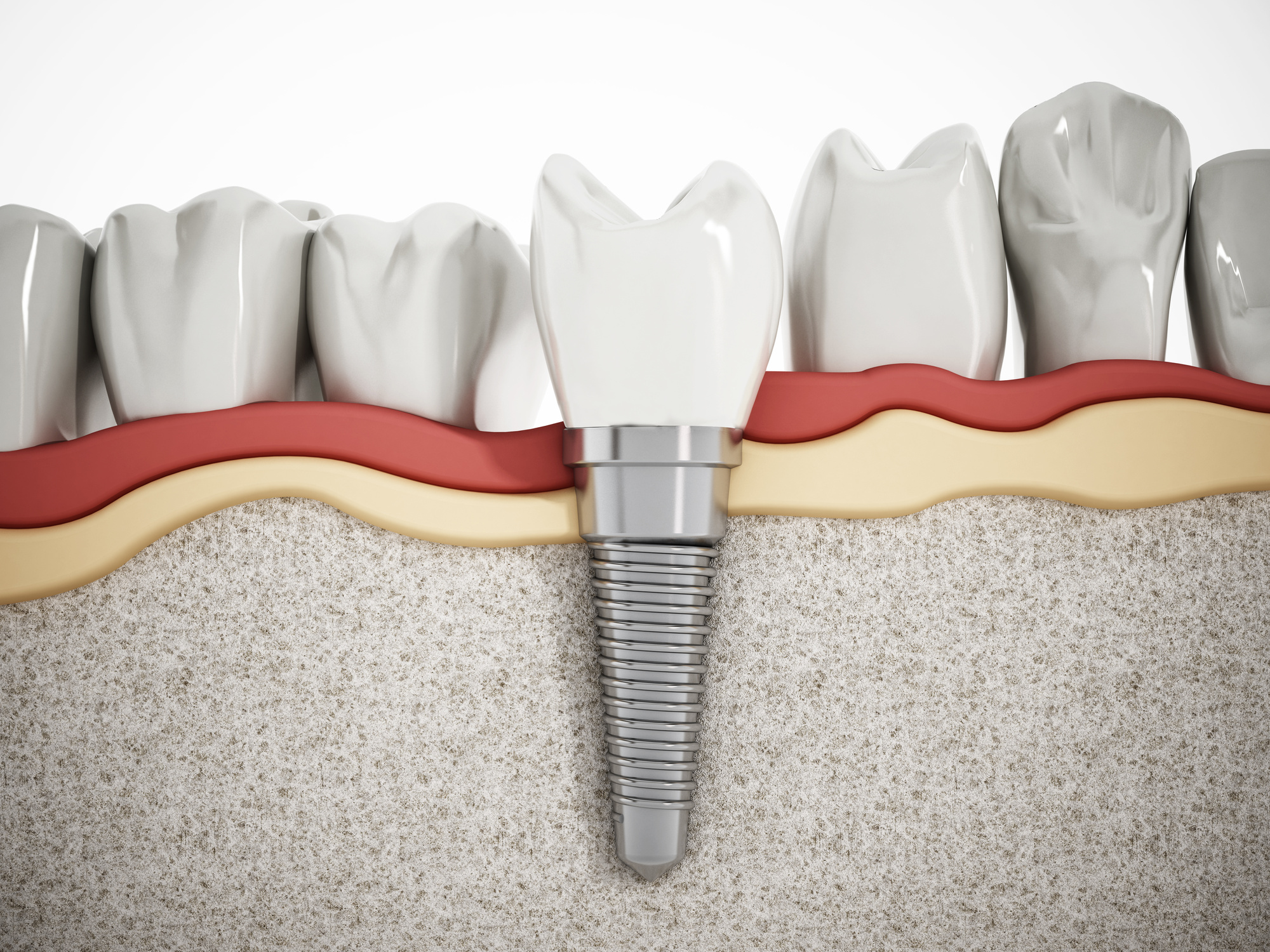 benefits of dental implants.jpeg